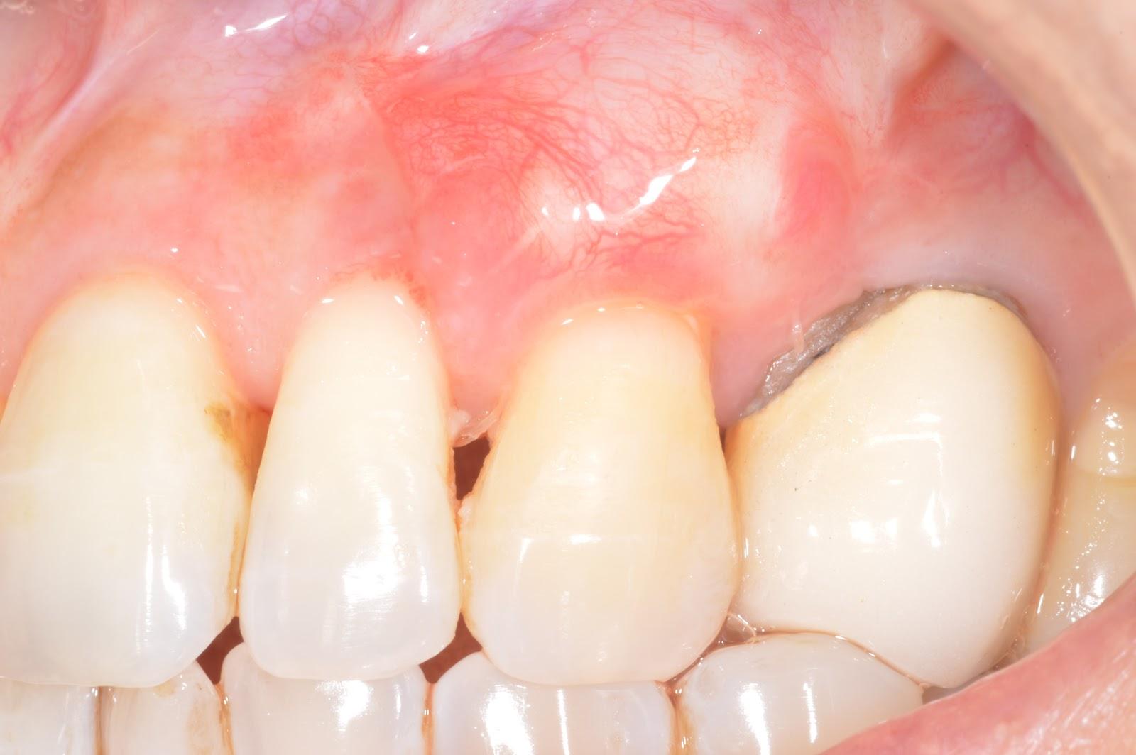 установка виниров на кривые зубы видео